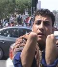 مصري يقطع يديه ليعاقب نفسه علي السرقة